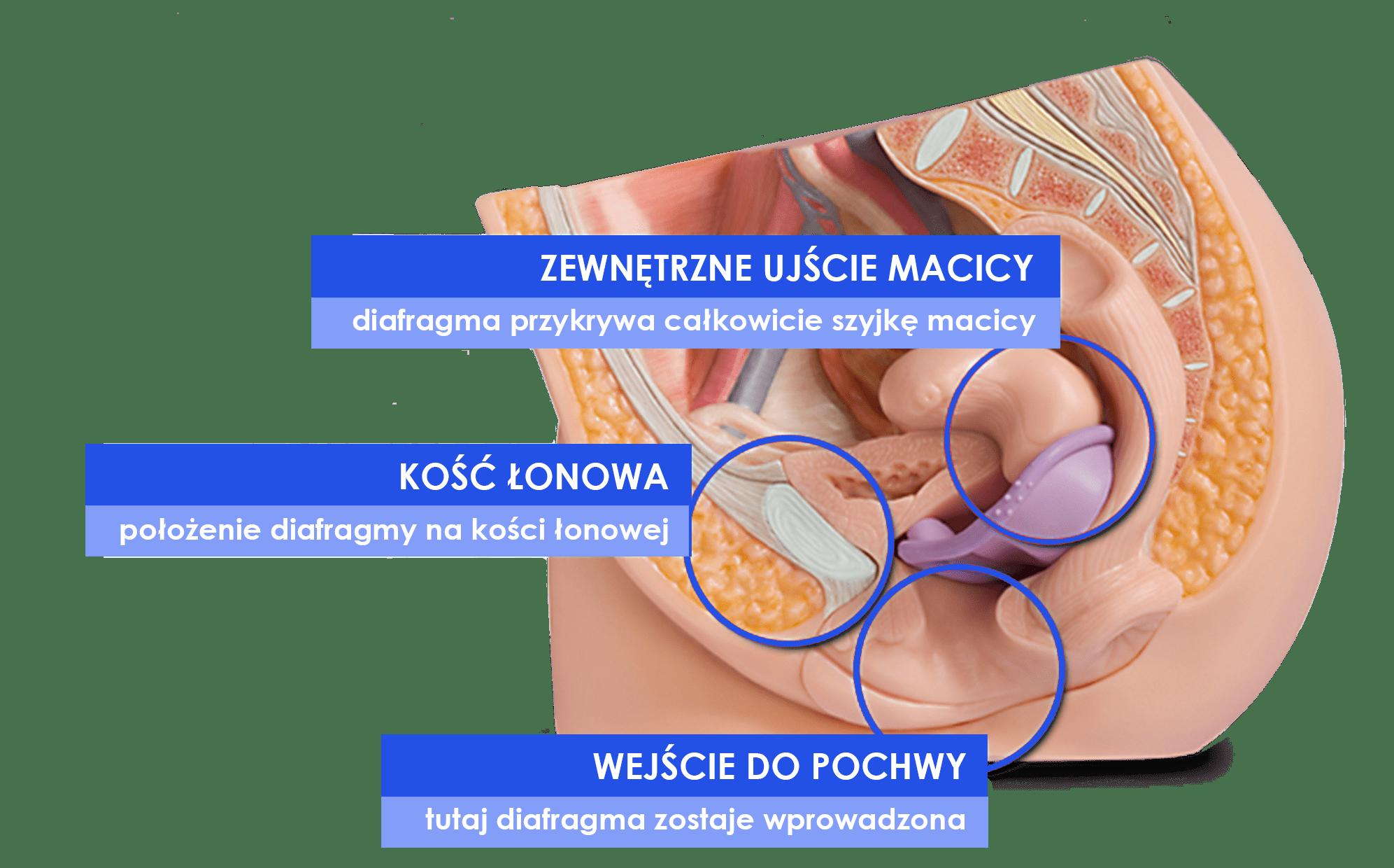 mechaniczna antykoncepcja, Jak działa, Diafragma Caya® - Antykoncepcja Bez Hormonów dla 98% Kobiet
